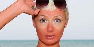 chữa da mặt bị khô ráp khi đi nắng